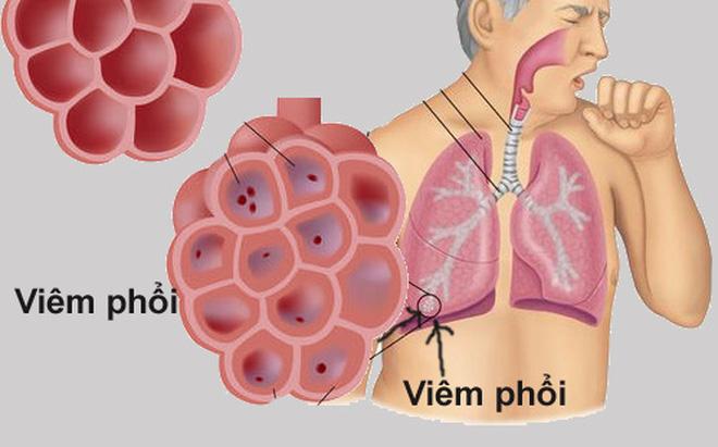 Bệnh viêm phổi là gì