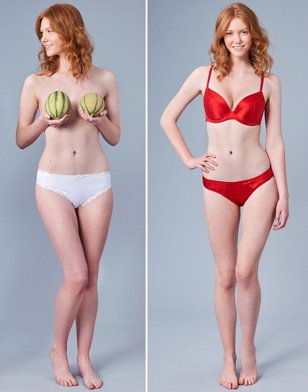 Ngực lệch, bên to bên nhỏ là kiểu dáng ngực khá phổ biến